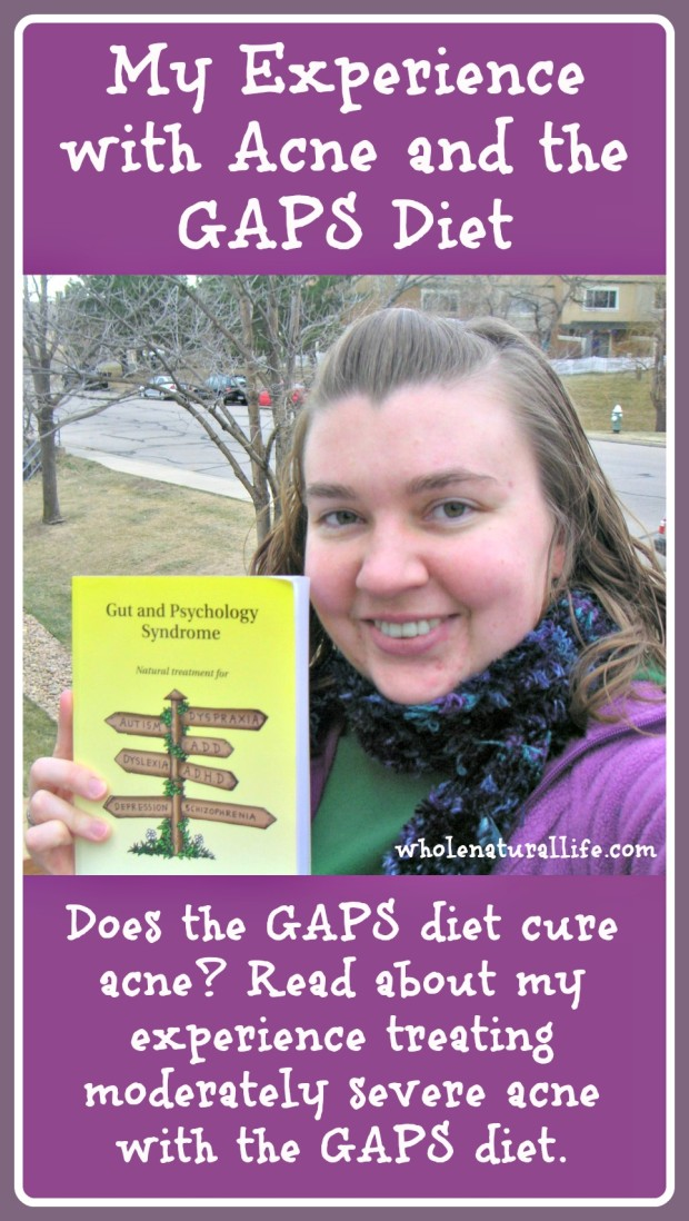 Does the GAPS diet cure acne? Click here to read about my experience treating moderately severe acne with the GAPS diet.
