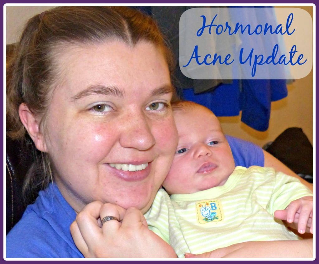 Hormonal Acne Update